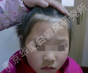 9岁女孩的抗白经历_南京华厦白癜风研究所